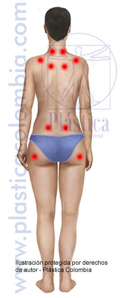 Ilustración Fibromialgia Posterior  Femenina