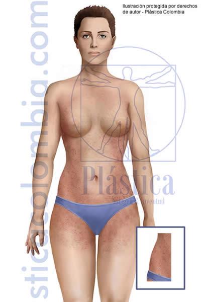 Ilustración Psoriasis Corporal