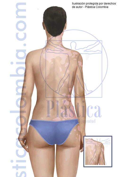 Ilustración Vitiligo