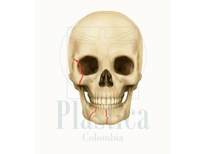 Fracturas Facial Frontal