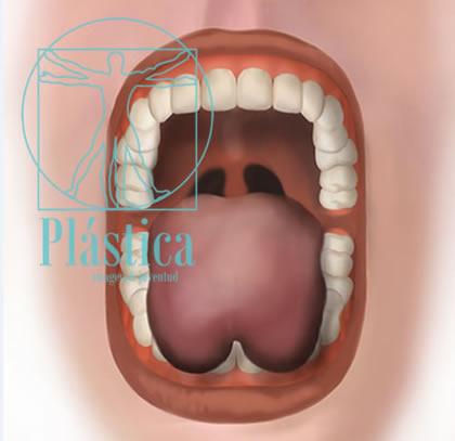 Frenillectomía lingual