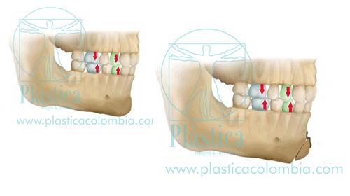 Los dientes - Genioplastia de avance
