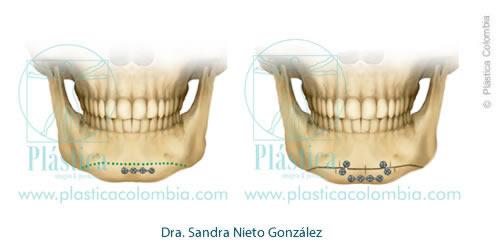 Genioplastia Maxilar - Procedimiento