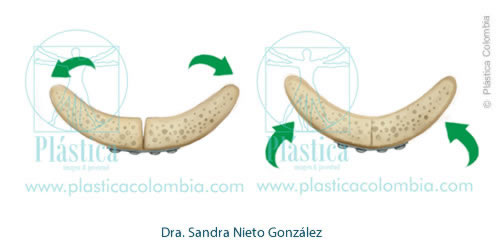 Genioplastia Maxilar Procedimiento