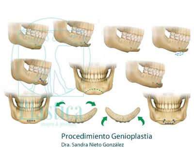 Procedimientos Combinados Genioplastia