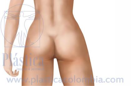 Ilustración gluteoplastia frontal