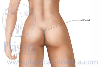 Ilustración implante glúteos