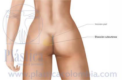 Ilustración implante de glúteos