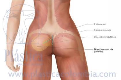 Ilustración aumento de glúteos con implantes