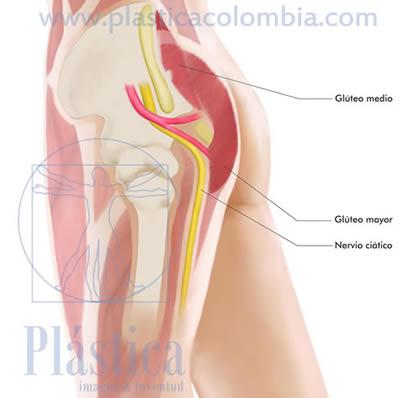 Ilustración gluteoplastia