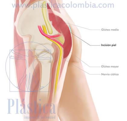 Gluteoplastia incisión piel