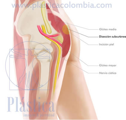 Gluteoplastia disección subcutánea