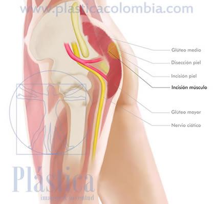 Gluteoplastia incisión músculo