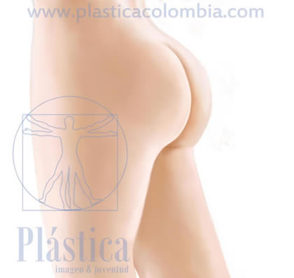 Prótesis glúteos