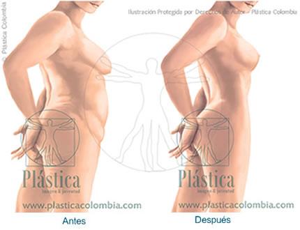 Ilustración de antes y después en Liposucción en mujeres