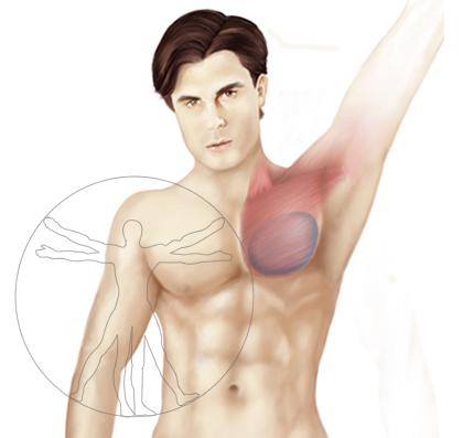 Gel de silicona implante pectoral