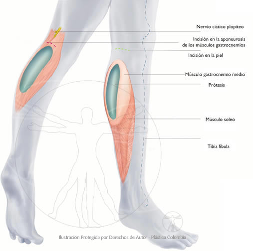 Implante Pantorrillas