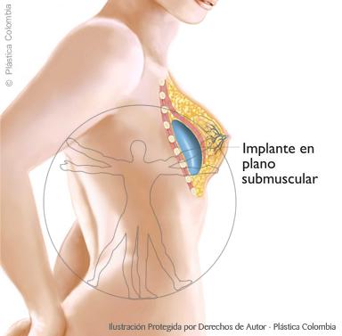 Implante mamario en plano submuscular