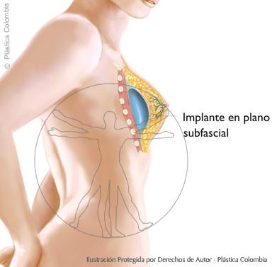 Implante mamario en plano subfascial