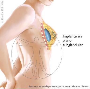 Implante mamario en plano subglandular