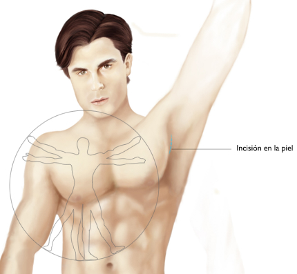 Silicona implante pectoral