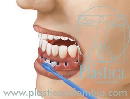 Higiene con Implantes