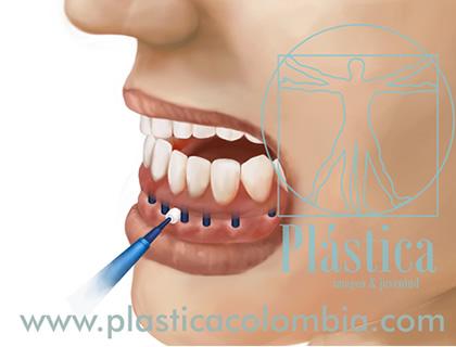 Limpieza en Implantes Dentales