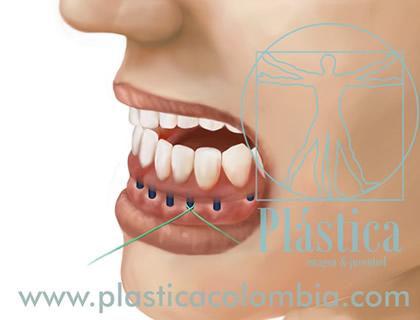 Limpieza Oral con Seda Dental