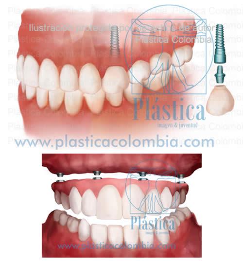 Ilustración Implantes Dentales