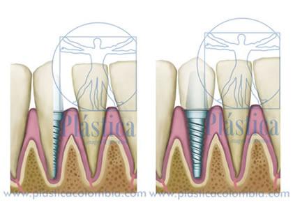 Salud Oral con Implantes Dentales