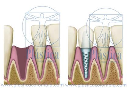 Pequeños tornillos de Titanio - Implantes Dentales