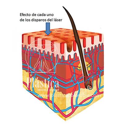 Rejuvenecimiento facial con Láser fraccionado CO2
