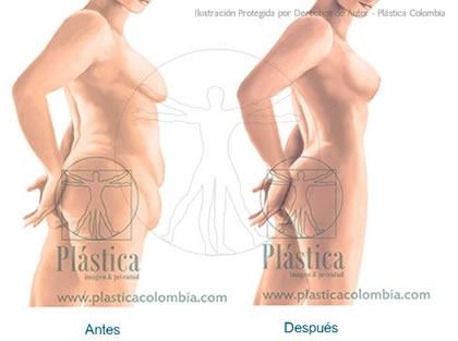 Ilustración Lipectomia en mujeres
