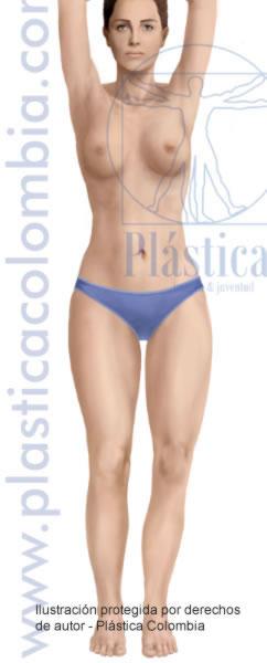 Ilustración cuerpo después de una liposucción