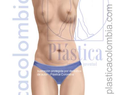 Ilustración de un abdomen con exceso de piel