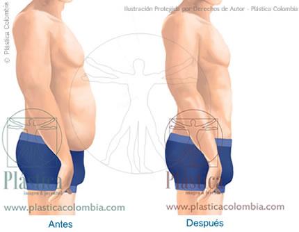 Ilustración antes y después en Liposucción en hombres