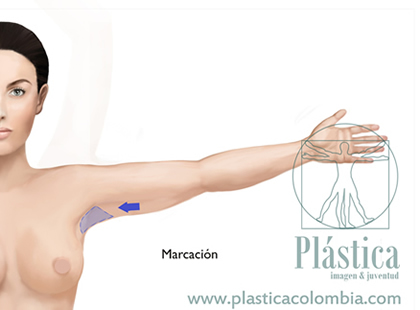 Marcación braquioplastia