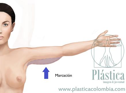Marcación braquioplastia lifting brazos