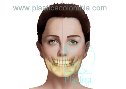 Simetria o Asimetria Facial