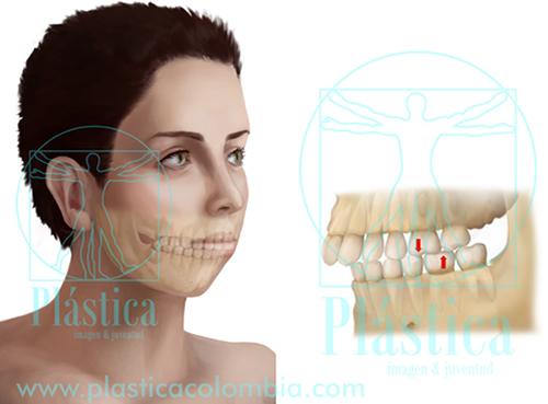 Déficit del crecimiento mandibular