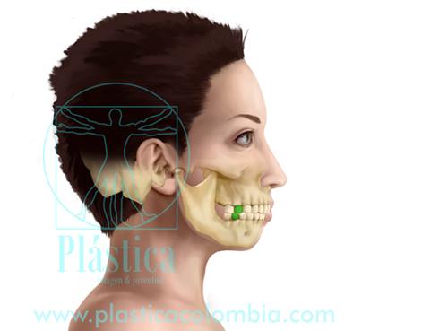 Discrepancia crecimiento maxilares