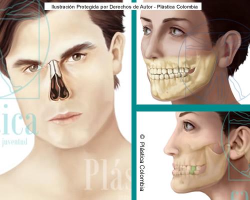 Ilustración tabique nasal con mandíbula