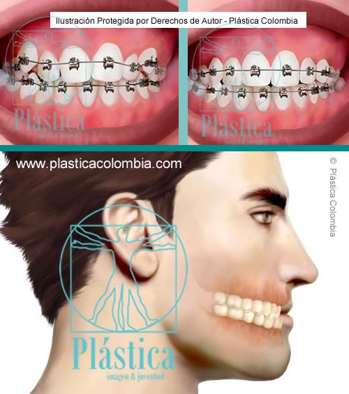 Ilustración de ortodoncia y cirugía maxilofacial