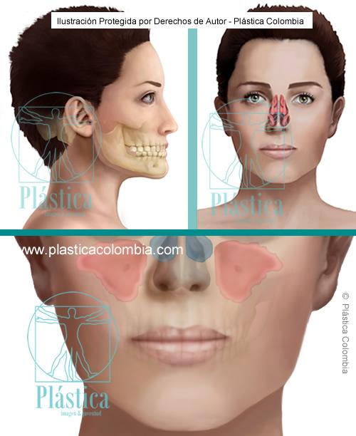 Ilustración tabique nasal con procedimientos maxilares