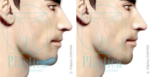 Mentoplastia con Implante