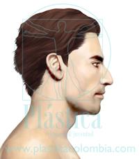 Ilustración Nariz Grande o Nariz de Camello - Giba Nasal en Hombre