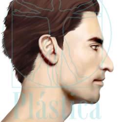 ilustracion nariz con la  punta nasal caída