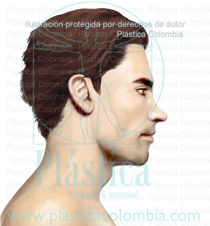 Ilustración de Nariz con alternaciones amplias en el Dorso Nasal