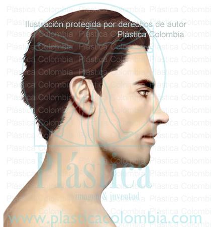 Ilustración Nariz con alternaciones en el Dorso Nasal