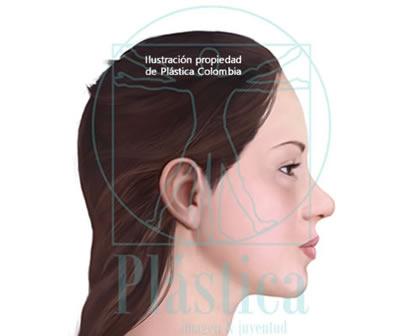 Ilustración Mujer Nariz ancha con punta nasal redonda